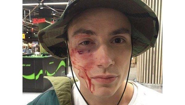 Участник группы Quest Pistols Show Даниил Мацейчук после избиения