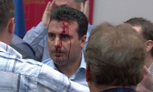 Избитый во время захвата парламента Македонии оппозиционер Зоран Заев
