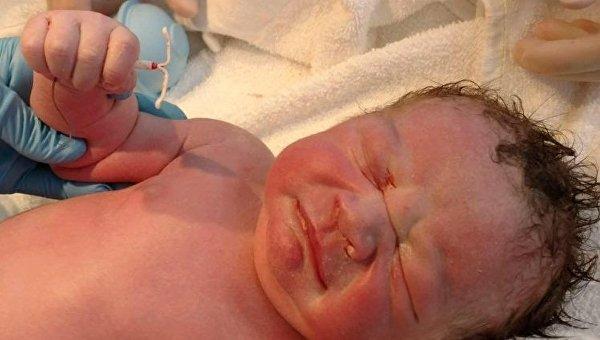 В США ребенок родился с контрацептивом в руках