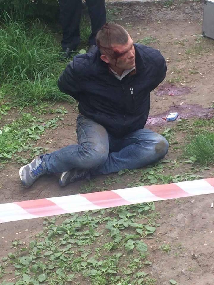 """В Каменском таксисту прострелили ноги из-за отказа ответить на """"Слава Украине"""""""