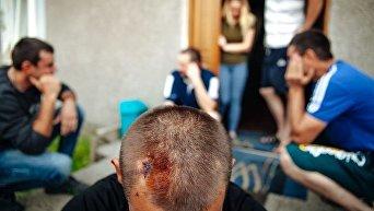 Украинцы, проживающие в Хващино. На первом плане пострадавший в результате атаки Петр