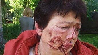 Избиение председателя территориальной избирательной комиссии (ТИК) Людмилы Демченко в поселке Коцюбинское под Киевом