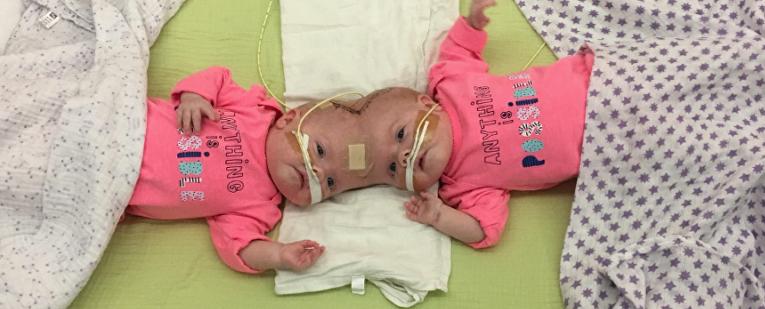 В США разъединили уникальных сиамских близнецов