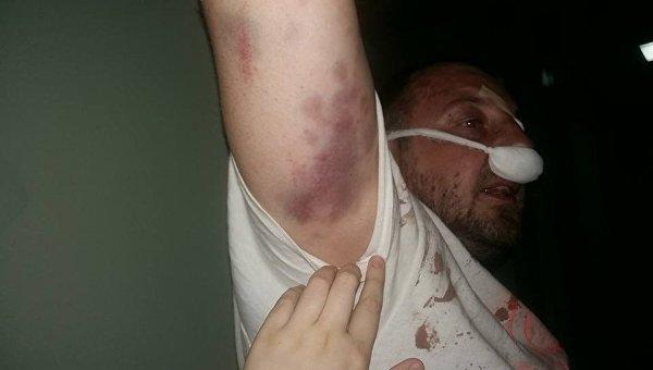 Избиение полицией добровольца АТО в Киеве