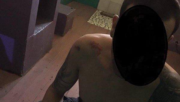 Последствия жестокого обращения с заключенными в Одесском СИЗО