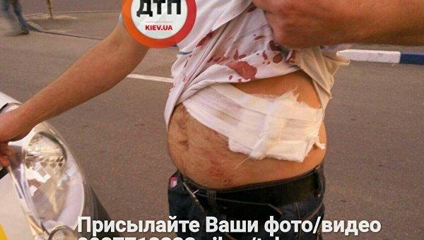 В Киеве мужчину изрезали ножом на автовокзале