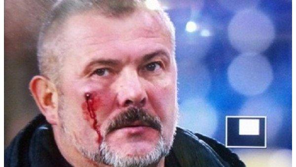 Ультрас клуба Днепр избили нардепа Юрия Березу