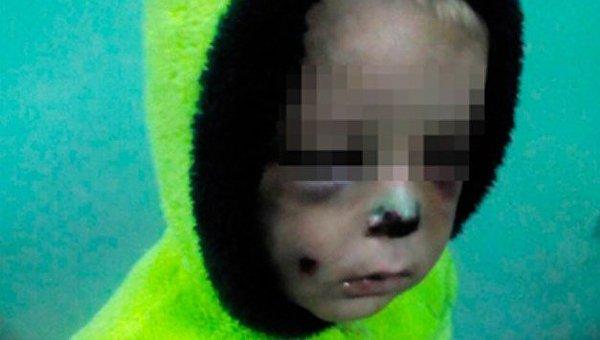 Сотрясение мозга исломанный нос: одичавшая мать безжалостно побила 2-летнего сына