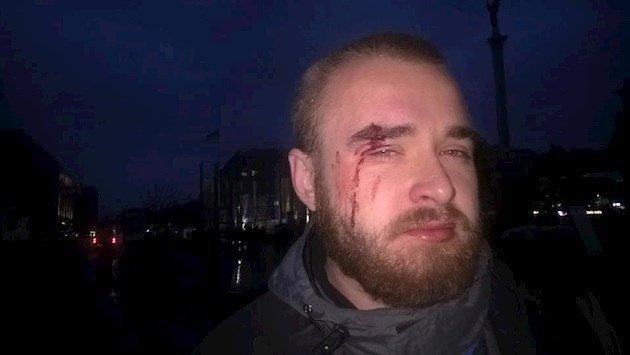 Лицо вкрови: появилось фото известного «киборга» после избиения вКиеве