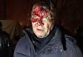 Атака на палаточный лагерь под Радой. Видео