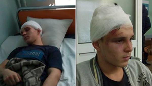 Избитый сын чиновницы Васильковской РГА