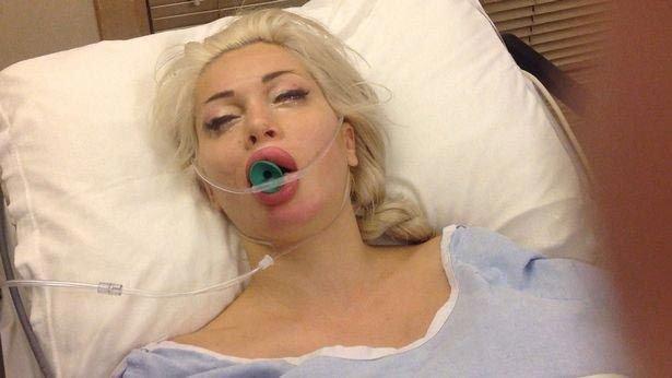 Живая кукла Пикси Фокс после операции по удалению ребер