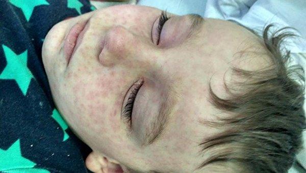 В киевскую детскую инфекционную больницу с диагнозом корь попали дети которые посетили перед новым годом цирк Кобзов