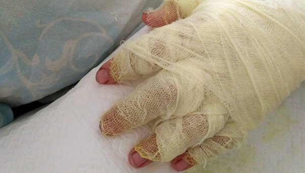 Рука женщины, которую змея укусила в Мелитополе