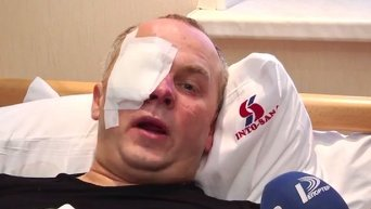 Нестор Шуфрич после избиения