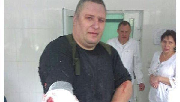 Раненный при взрыве в Харькове Сергея Янголенко