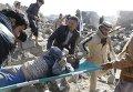 Раненый в результате авиаудара по Йемену