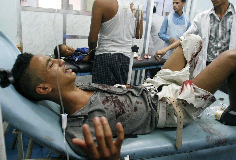 Житель города Таиз раненый во время уличных боев в Йемене