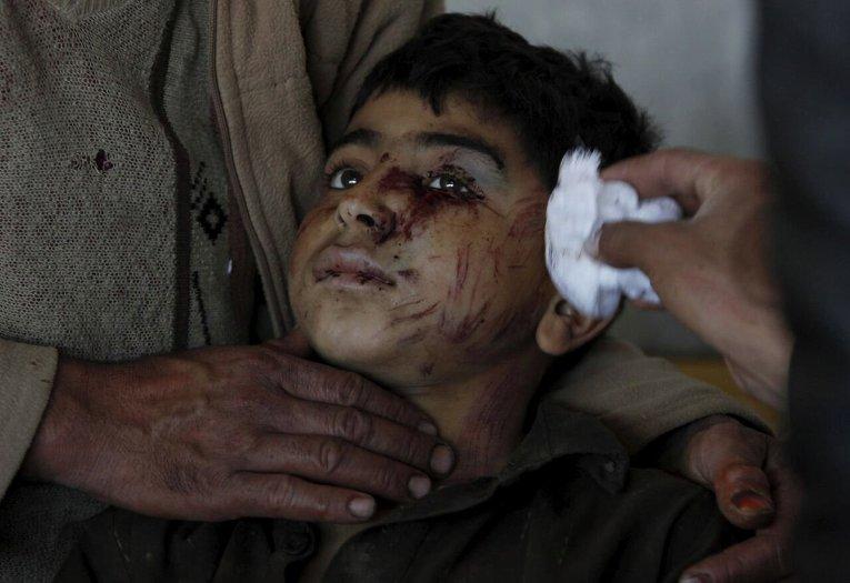 Пострадавший ребенок в больнице Пешавара - административном центре пакистанской провинции Хайбер-Пахтунхва