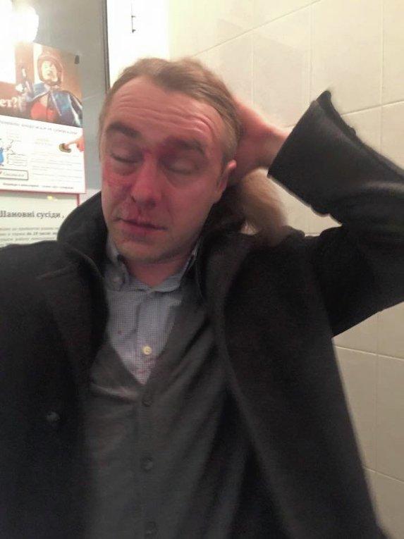 Игорь Мирошниченко после избиения